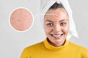 olio di argan combattere acne