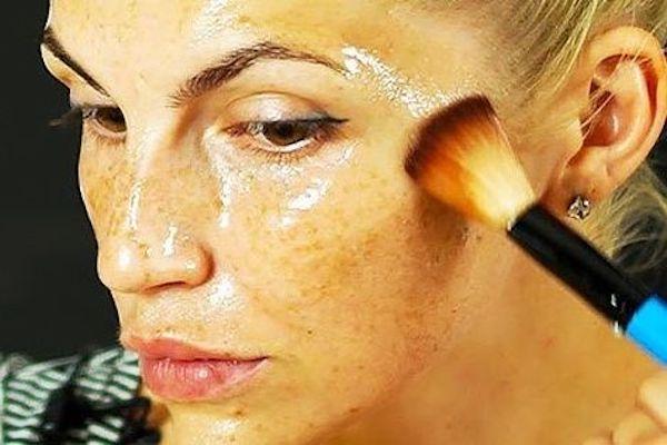 olio limone contro acne